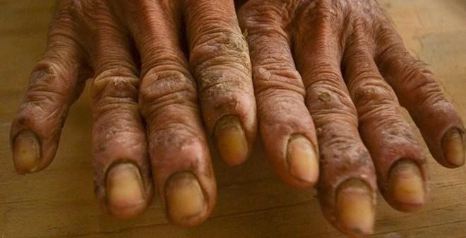 Người đàn ông bị phong tổ đỉa, phải nhúng tay vào nước khi đau