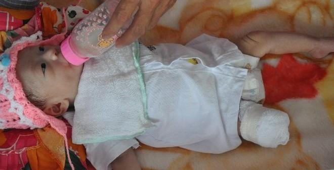 Em bé bị văng ra khỏi bụng mẹ hạnh phúc ngày đầy tháng