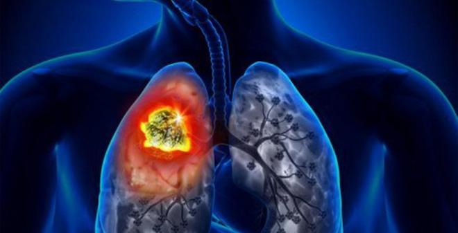 Ung thư phổi tìm đến người Việt bằng cách nào?