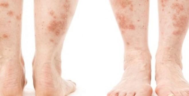 4 bệnh ngoài da cảnh báo thêm các vấn đề sức khỏe