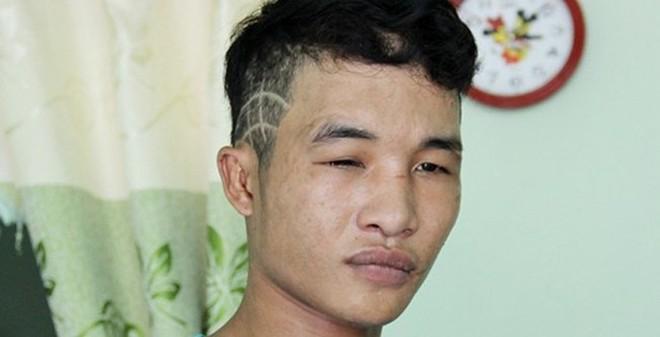 Hào Anh bị bắt vì trộm máy tính ở Lâm Đồng