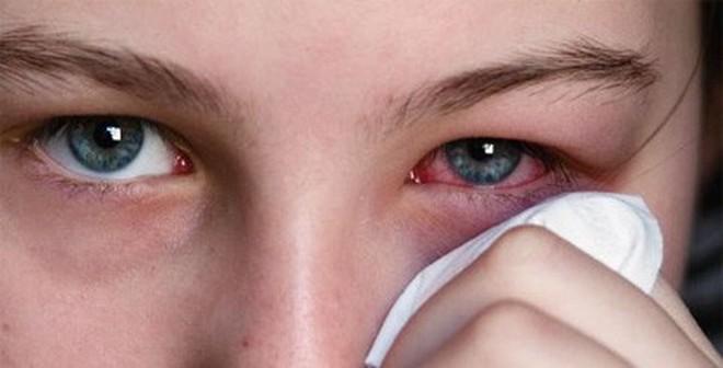 Bài thuốc trị đau mắt đỏ không dùng kháng sinh chỉ 3 ngày là khỏi