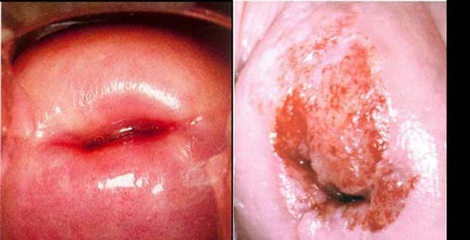 Những thói quen không ngờ khiến bạn mắc ung thư cổ tử cung