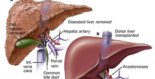 6 nguyên nhân khiến bạn có nguy cơ mắc ung thư gan cực cao