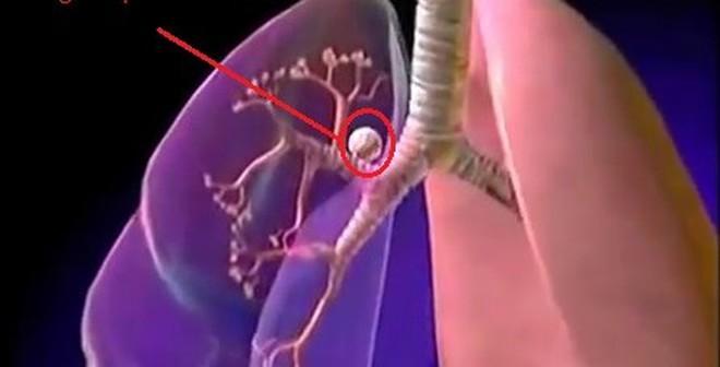 Dấu hiệu cấp báo ung thư phổi bạn có thể bỏ qua