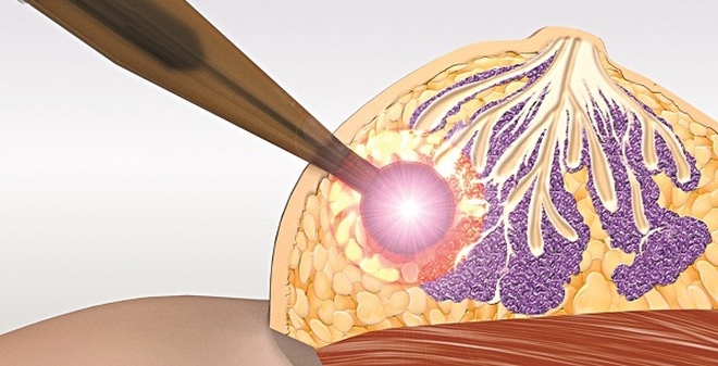 Bài thuốc kỳ diệu chữa 1 người ung thư vú bị chảy máu không ngừng