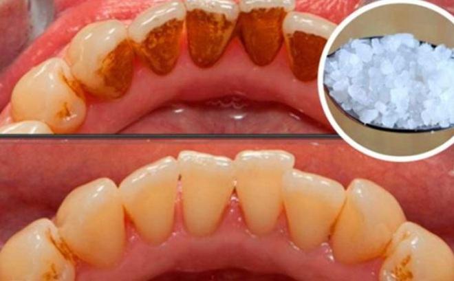 Không đi nha sĩ và sử dụng thuốc hóa chất, cao răng vẫn sạch bóng nhờ 2 cách đơn giản sau