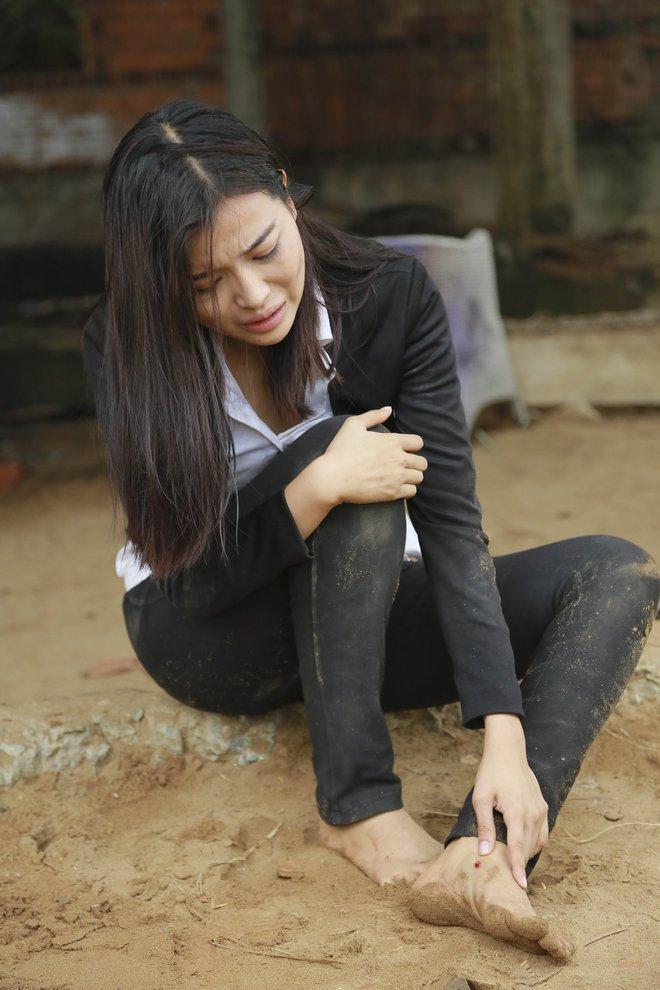 Cao Thái Hà bị tai nạn trên phim trường - Ảnh 6.
