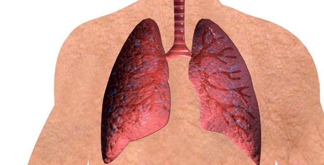 Vitamin B giúp giảm nguy cơ mắc ung thư phổi lên đến 50%