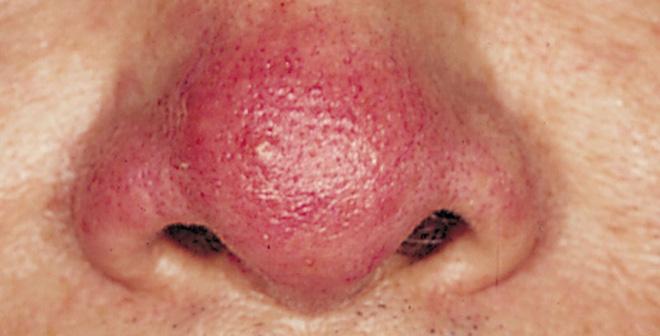 """5 dấu hiệu trên khuôn mặt cảnh báo gan đang """"cầu cứu"""""""