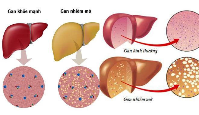 Uống rượu thay cơm trong 10 năm, gan phình to toàn bong bóng mỡ - Ảnh 1.