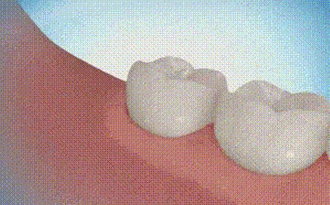 Chàng trai 24 tuổi tử vong do nhổ răng khôn: Tại sao 1 cái răng lại nguy hiểm đến vậy?