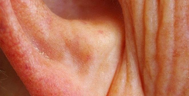 Nếp nhăn này sinh ra 5 loại bệnh, nếu có nó bạn sẽ khó sống thọ