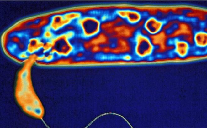 Phát hiện vi khuẩn ăn thịt có thể tiêu diệt các loại vi khuẩn kháng thuốc