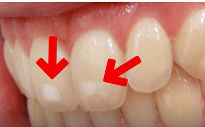 Răng bạn có những đốm trắng này không - hãy cẩn thận nếu thấy chúng