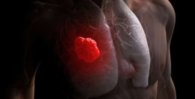 Cứ hút 15 điếu thuốc lá, bộ gen của bạn sẽ đột biến một lần