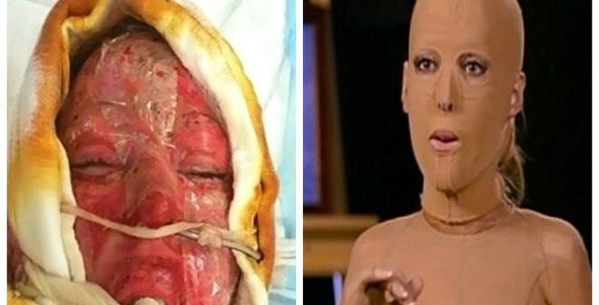 Bất ngờ với khuôn mặt cô gái tháo bỏ mặt nạ sau hơn 2 năm giấu mình vì bị đánh ghen