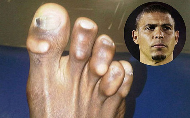 """Vì vinh quang, những Ronaldo, Villa... đã trả giá bằng đôi chân biến dạng """"dị"""" như thế này đây"""