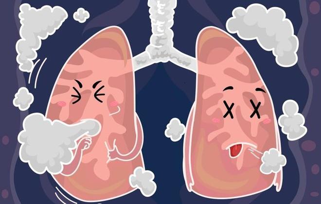 8 dấu hiệu cảnh báo phổi đang có vấn đề, bạn không được chủ quan! - Ảnh 1.