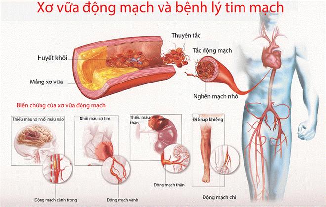 Sát thủ thầm lặng gây bệnh nhồi máu cơ tim, huyết áp - Ảnh 2.