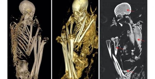 Bí mật nào bị chôn giấu trong xác ướp độc nhất ở châu Phi?