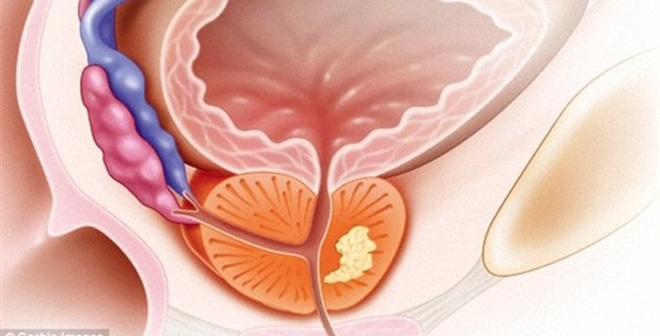 Bác sĩ khuyên bạn cách ăn uống để tránh xa bệnh về tuyến tiền liệt