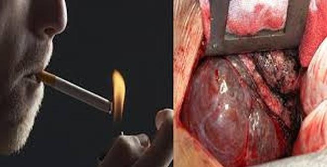 Sợ ung thư phổi, bạn nên dành 1 phút để xem clip này