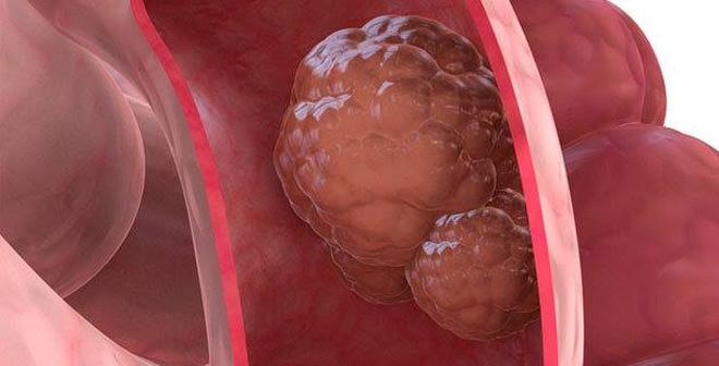 Tất cả thông tin đầy đủ nhất về ung thư đại trực tràng