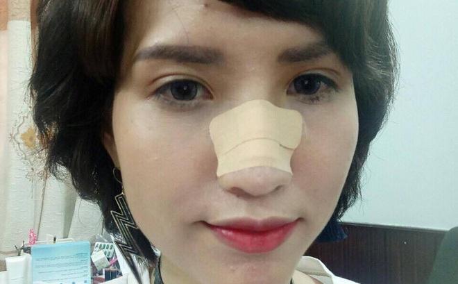 Hồng Xuân lên tiếng về vụ chấn thương mũi sau ẩu đả tại Vietnam's Next Top Model