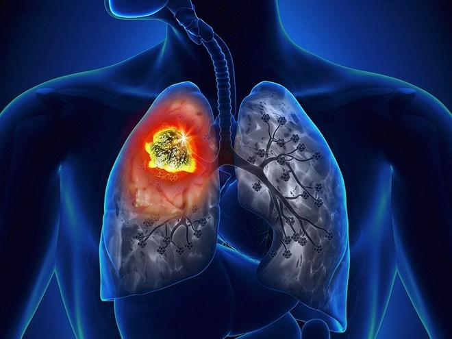 Ung thư phổi có tỷ lệ tử vong rất cao: 4 nhóm người cần đặc biệt chú ý đến việc khám phổi - Ảnh 4.