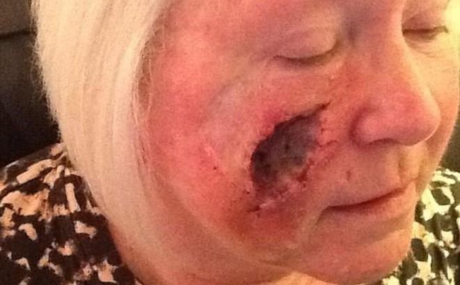 Thích nhuộm da tắm nắng, quý bà bị khoét lỗ sâu hoắm trên mặt do ung thư