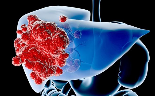 Biến chứng nguy hiểm của bệnh ung thư gan: Cần biết để phòng bệnh trước khi quá muộn