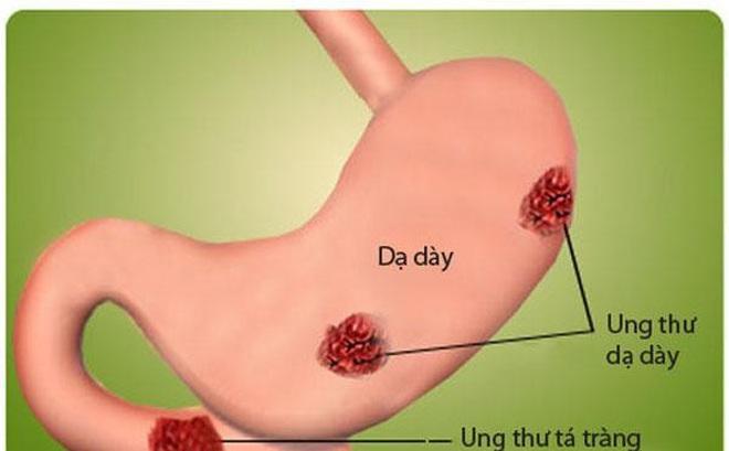 PGĐ Bệnh viện Việt Đức: Cảnh báo 2 nguyên nhân khiến người Việt mắc ung thư dạ dày
