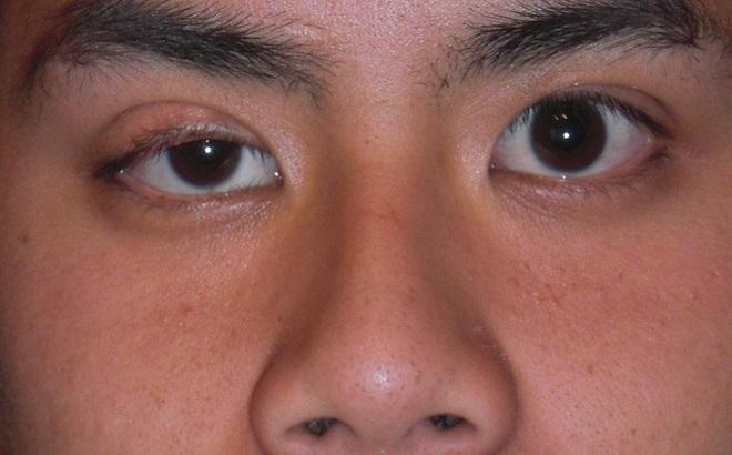 """Kết quả hình ảnh cho triệu chứng lẹo mắt"""""""