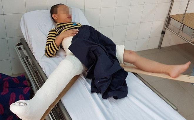 Công an Hà Nội công bố kết luận ban đầu vụ học sinh bị taxi chở Hiệu trưởng đâm gãy chân