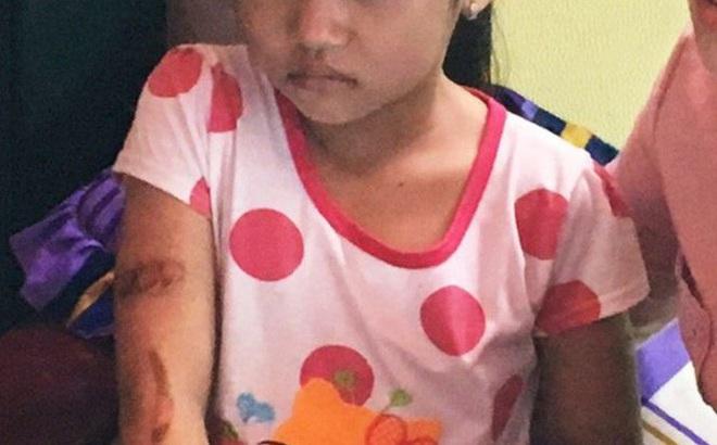 Đưa bé 7 tuổi nghi bị bố dí sắt đỏ đi giám định thương tật