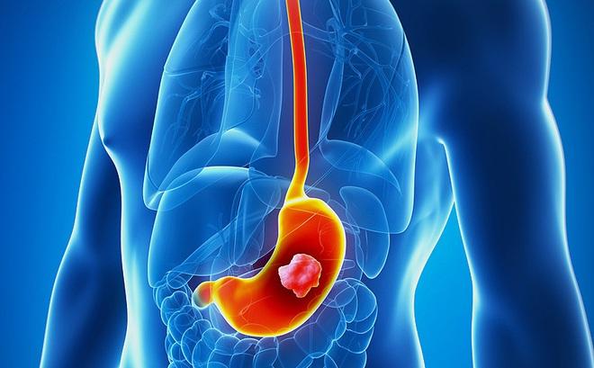 Đừng chờ đến lúc đau, 6 dấu hiệu phải đi khám ung thư dạ dày ngay đừng chậm trễ