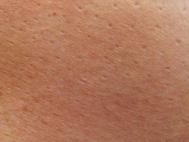 Từ đốm nhỏ màu hồng trên da đến ung thư giai đoạn cuối: Đừng chủ quan dù là 1 dấu hiệu nhỏ - Ảnh 2.