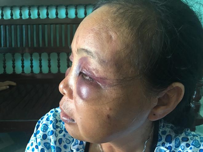 Người phụ nữ bị đánh vì nghi bắt cóc trẻ em: Tôi đã van xin rất nhiều lần nhưng họ không tha... - Ảnh 6.