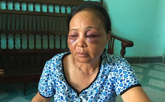 """Người phụ nữ bị đánh vì nghi bắt cóc trẻ em: """"Tôi đã van xin rất nhiều lần nhưng họ không tha..."""""""