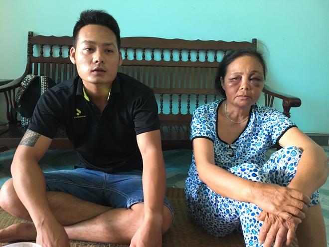 Người phụ nữ bị đánh vì nghi bắt cóc trẻ em: Tôi đã van xin rất nhiều lần nhưng họ không tha... - Ảnh 8.