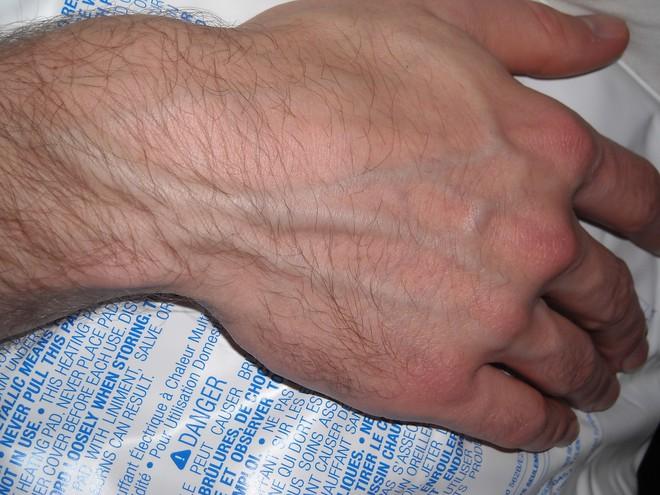 Nên làm gì khi thấy những gân xanh nổi trên người: Giáo sư Anh chia sẻ cách xử lý - Ảnh 2.