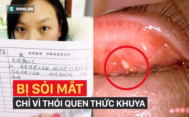 Cô gái bị sỏi mắt mọc chi chít phải nhập viện cấp cứu chỉ vì thói quen nhiều người mắc