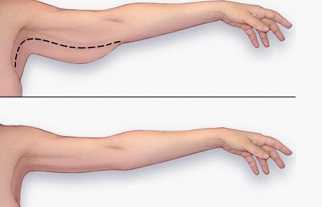 6 động tác làm gọn bắp tay chảy xệ chỉ sau 1 tháng: Cả nam và nữ đều nên tập ngay - Ảnh 2.