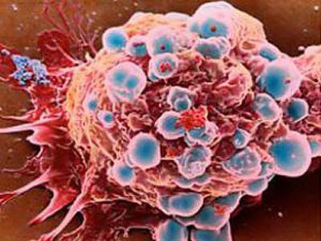 6 bệnh ung thư hay gặp ở phụ nữ - Ảnh 2.