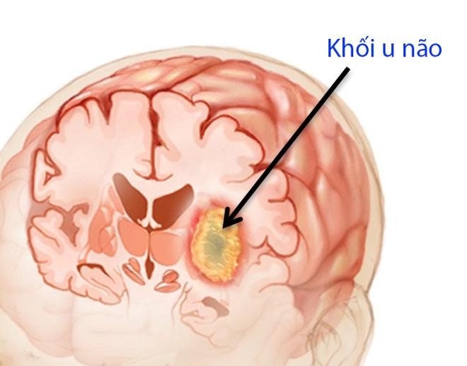 Bác sĩ Mỹ cảnh báo dấu hiệu bạn có thể đang có khối u trong não - Ảnh 3.