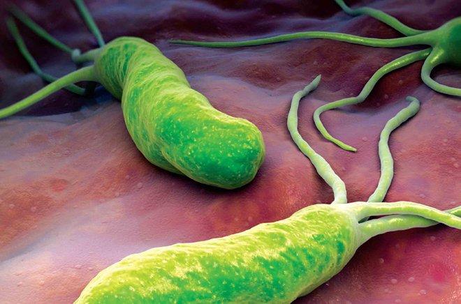 Viêm dạ dày trẻ em và nỗi ám ảnh của vi khuẩn HP - Ảnh 1.