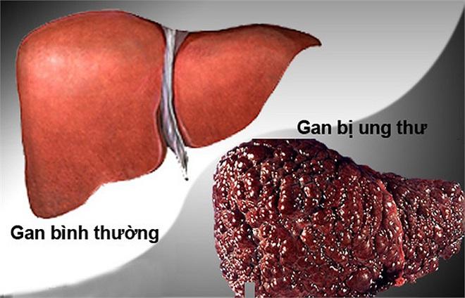 Gan là nhà máy sản xuất hóa chất, rất dễ bị nhiễm độc: Dấu hiệu và cách giải độc gan nên làm  - Ảnh 2.