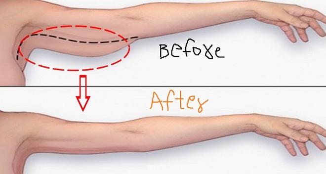 10 động tác thể dục đơn giản làm thon gọn cánh tay hiệu quả, bạn đã thử tập chưa? - Ảnh 2.
