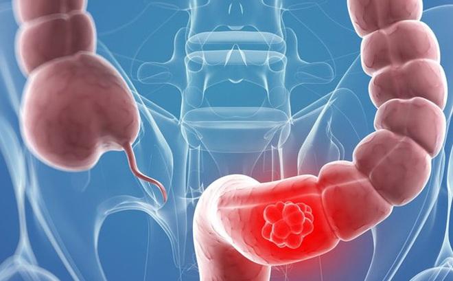 Bí mật của chế độ ăn giảm được 86% nguy cơ ung thư đại trực tràng: Có thể có ích cho bạn